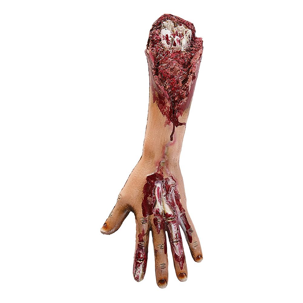 Avhuggen Arm med Köttsår